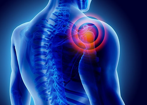 Thoracic Dysfunction and Shoulder Impingement