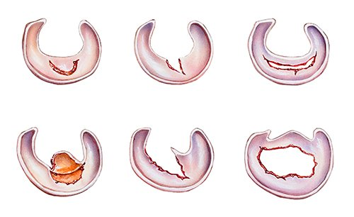 Research Review: Thessaly Test for Detection of Meniscal Tears