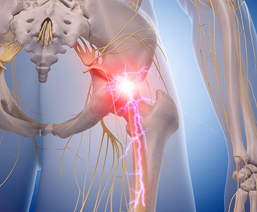 Manipulation or Microdiskectomy For Sciatica? A Prospective Randomized Clinical Study